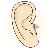 In-the-Canal (IC) Hearing Aids